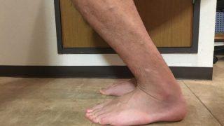 アキレス腱断裂12週間後 歩行はケガする前のレベルに
